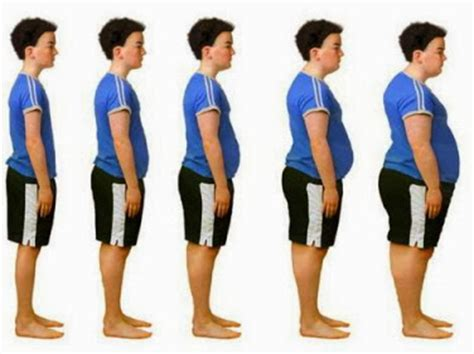 Free Research Projects: Research Paper on Obesity in America